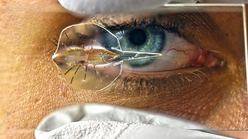 eye-stingray-1280px